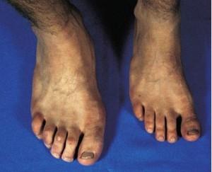 Gigantism foot image