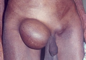 Groin Hernia picture