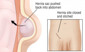 Groin Hernia – Pictures, Symptoms, Surgery, Recovery, Repair