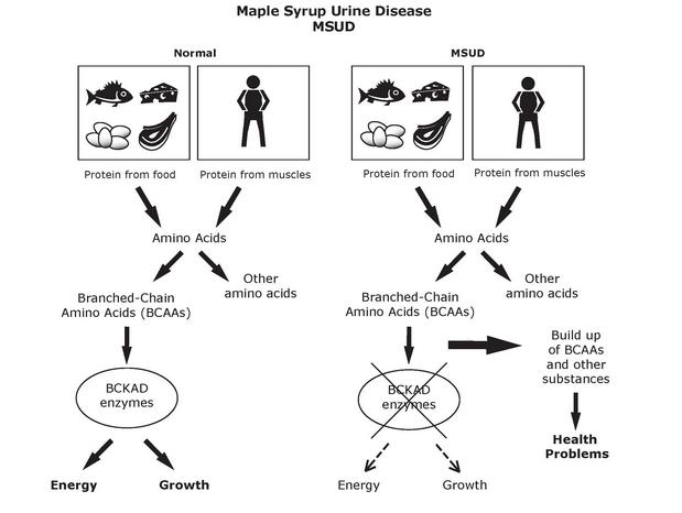 Maple Syrup Urine Disease image