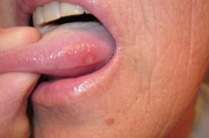 Sore Tongue photo
