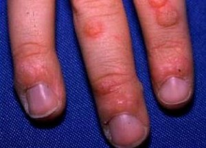 Flat-Warts-on-Hands