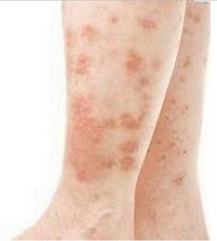 Flat Warts Pictures On Face Legs Hands And Treatment