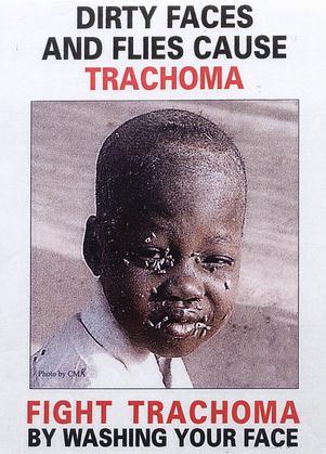 trachoma picture