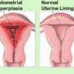 Bleeding after menopause anatomy