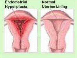 Bleeding after menopause anatomy