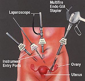Laparoscopic Hysterectomy Procedure