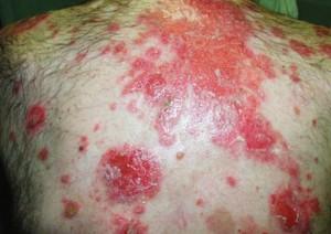 pemphigus vulgaris image