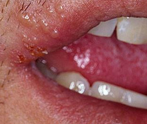 A rampant lip pimple due to cold sores or herpes.picture